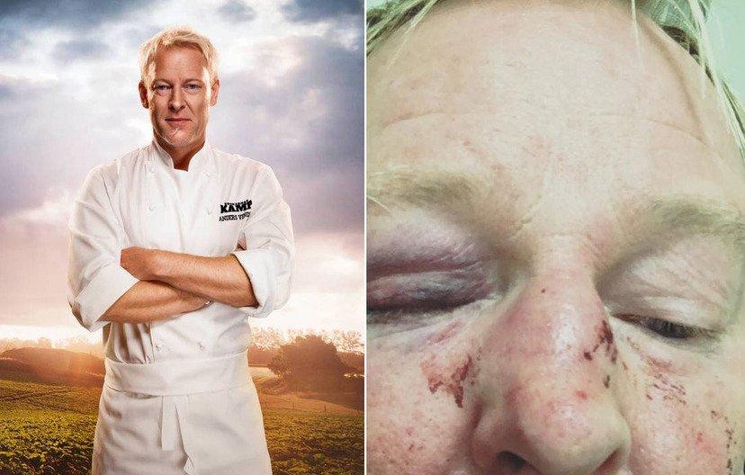 Anders Vendel - před a po