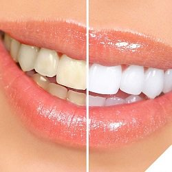 Best Teeth Whitening Kit tech reviews gear DIY startups shopping entrepreneur