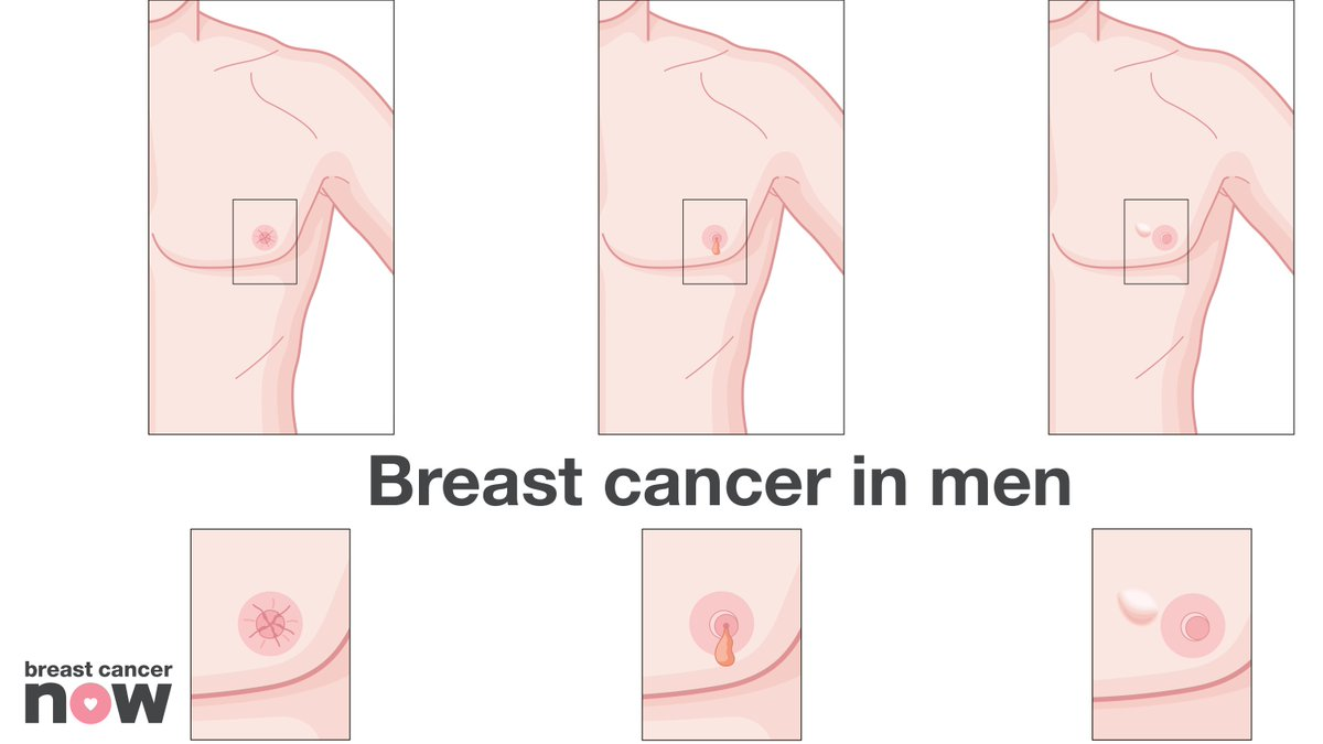 Unusual breast cancer pictures