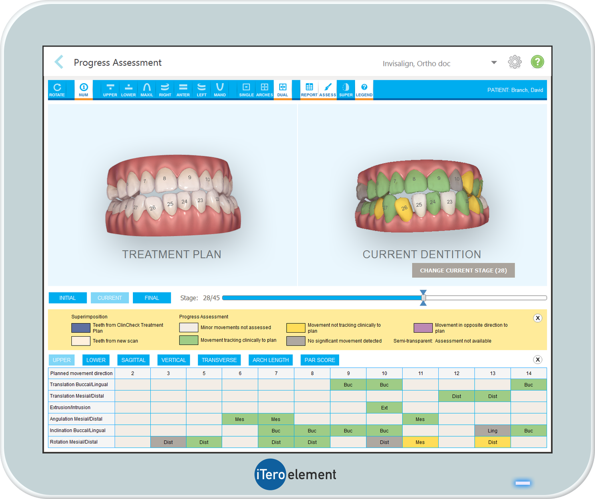 """iTero Scanner on Twitter: """"WEBINAR ON DEMAND: """"Inspire Your Patients and  Ignite Your Practice with the Invisalign® Outcome Simulator""""  https://t.co/ms9rd8npku… https://t.co/9udI49R7tn"""""""