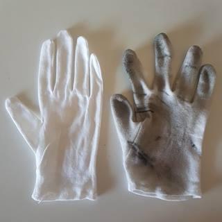 dermato cest un truc de contact portez un gant pour