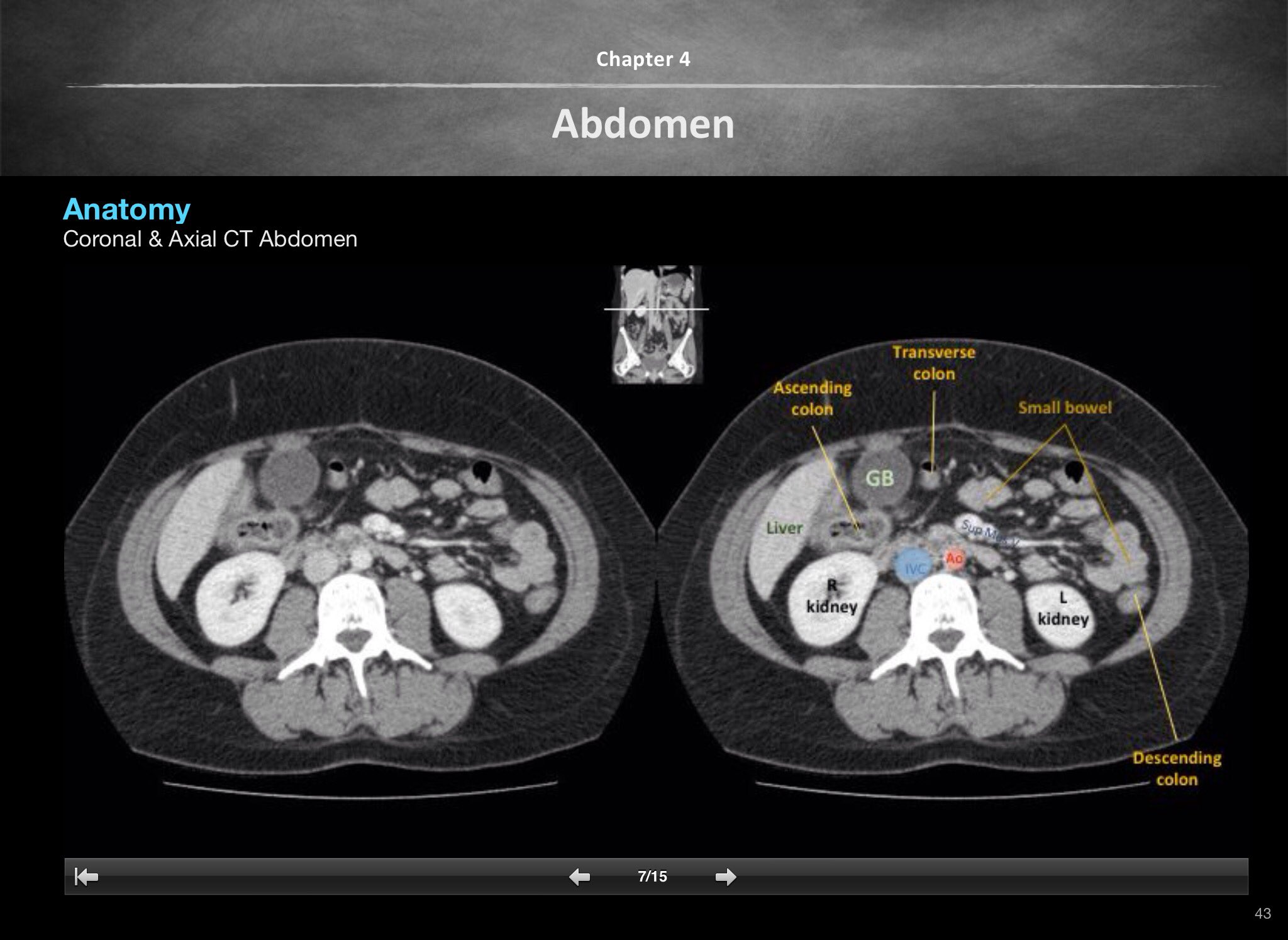 Radiology Basics on Twitter: \