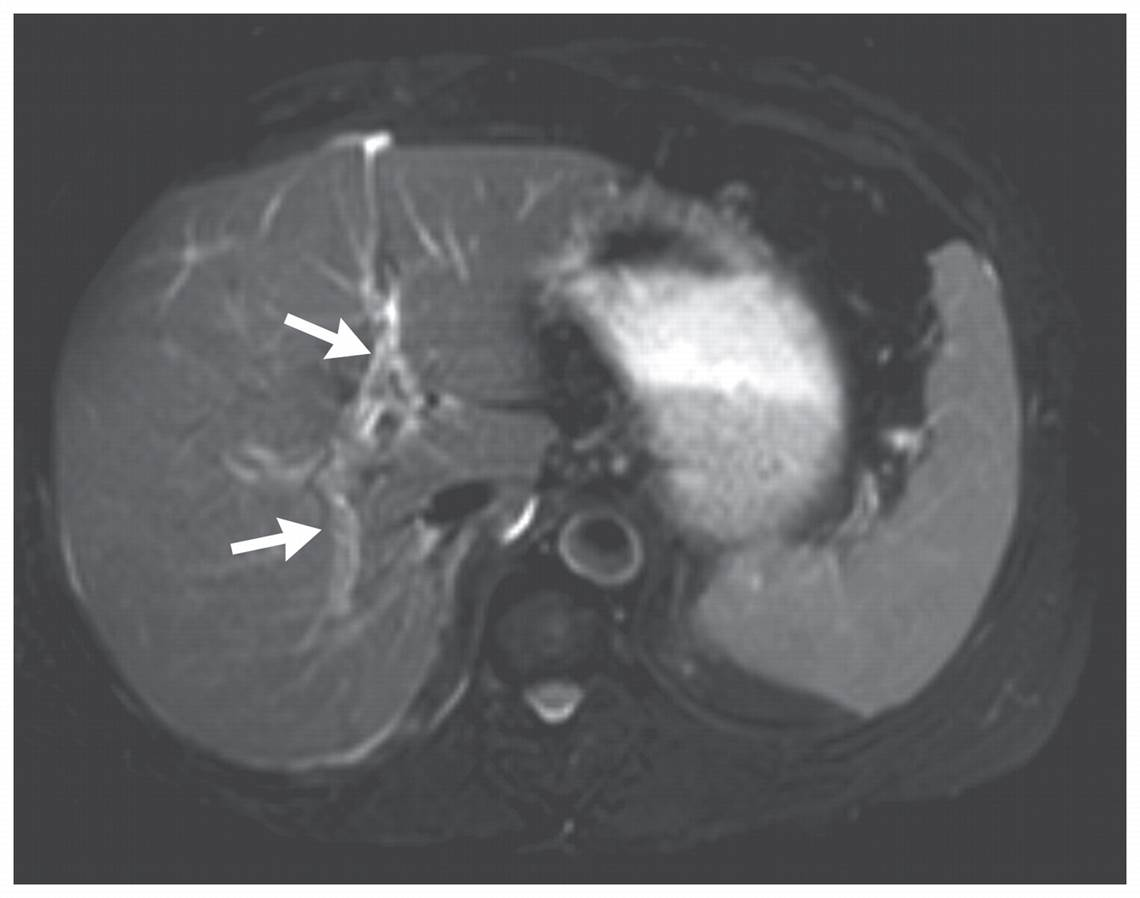 acute renal failure ms jones a 68 year old female underwent Scenario a acute renal failure: ms jones, a 68-year-old female, underwent open-heart surgery to replace several blocked vessels in her heart on her first day postoperatively, it was noted that she had very little urine output.