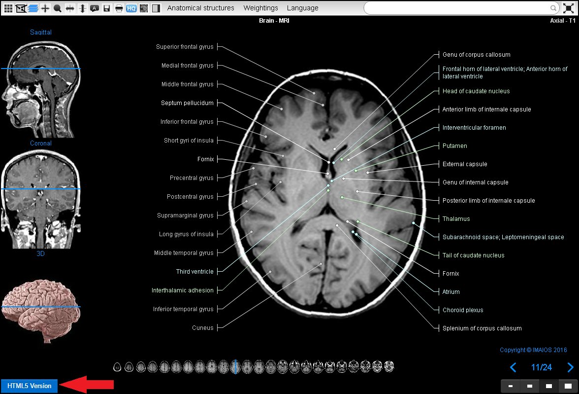 Imaios On Twitter 22 To Try Eanatomy Html5 Use A Modern Browser