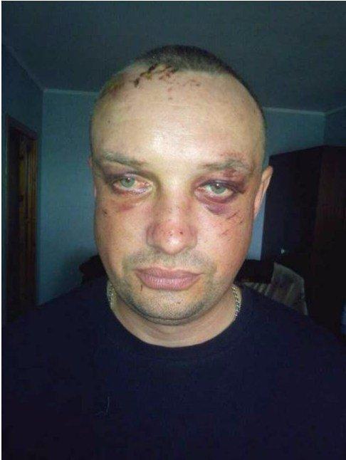ГПУ подозревает руководителей полицейской спецоперации в Княжичах в служебной халатности, - Луценко - Цензор.НЕТ 9801