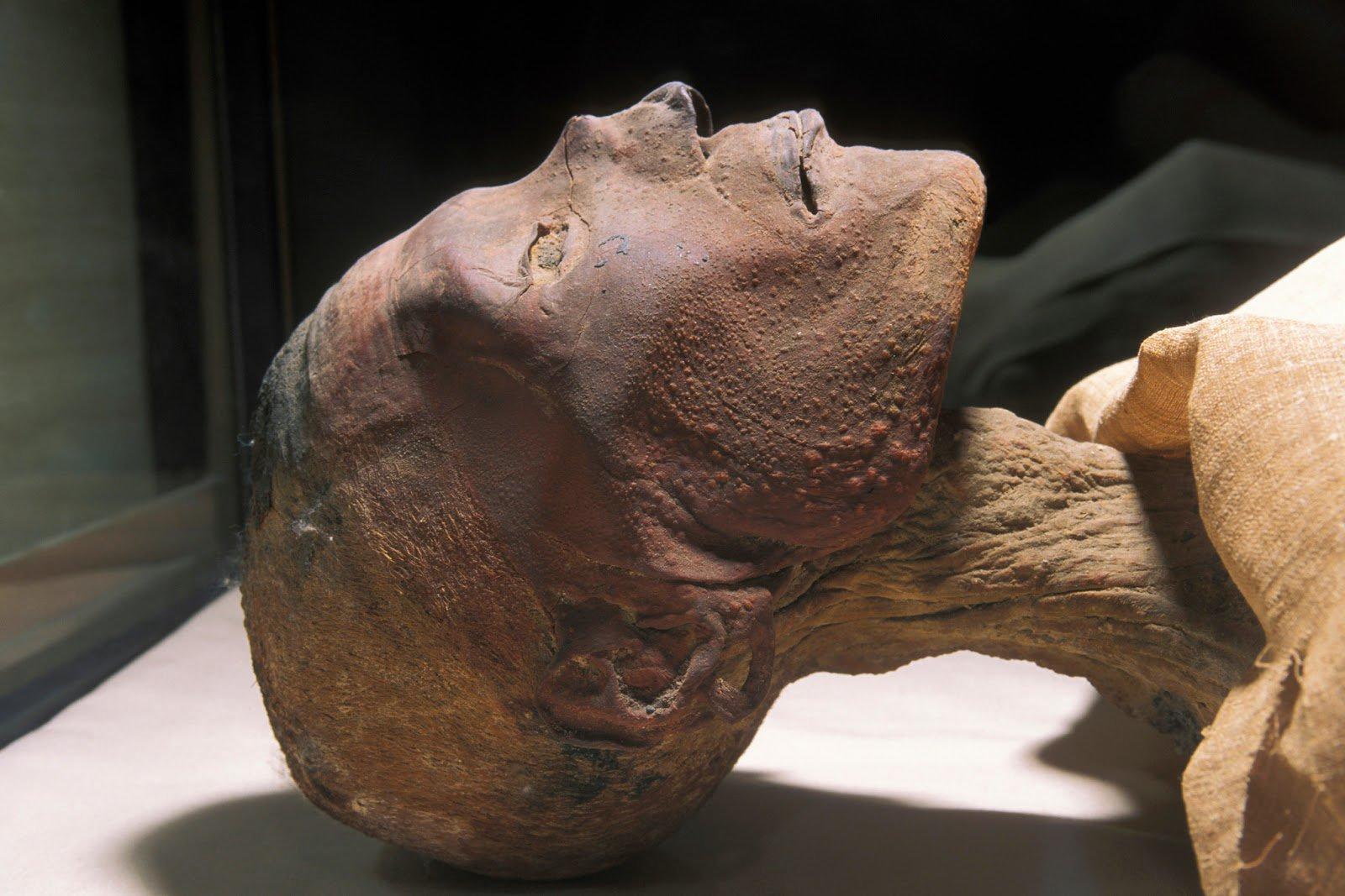 Usermaatra-Sejeperenra Ramsés-Amonhirjopshef Ramsés V para los amigos el caso de #viruela + antiguo que se conoce (1147-1143 aC) #22ángeles https://t.co/fXdzimSZ94