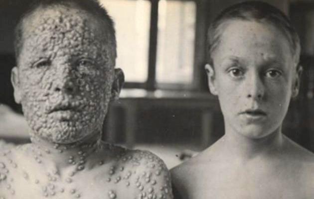 En los siglos XVII-XVIII la #viruela asoló Europa, solo en Inglaterra afectó a más del 90% de los niños #22ángeles https://t.co/kh4jey16Wb
