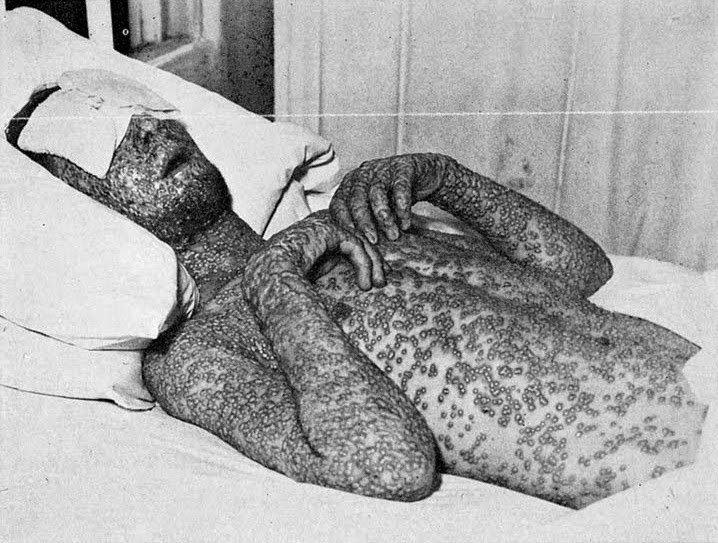 Más del 30% de las personas infectadas por #viruela podían morir a los pocos días #22ángeles https://t.co/bI811nByNn