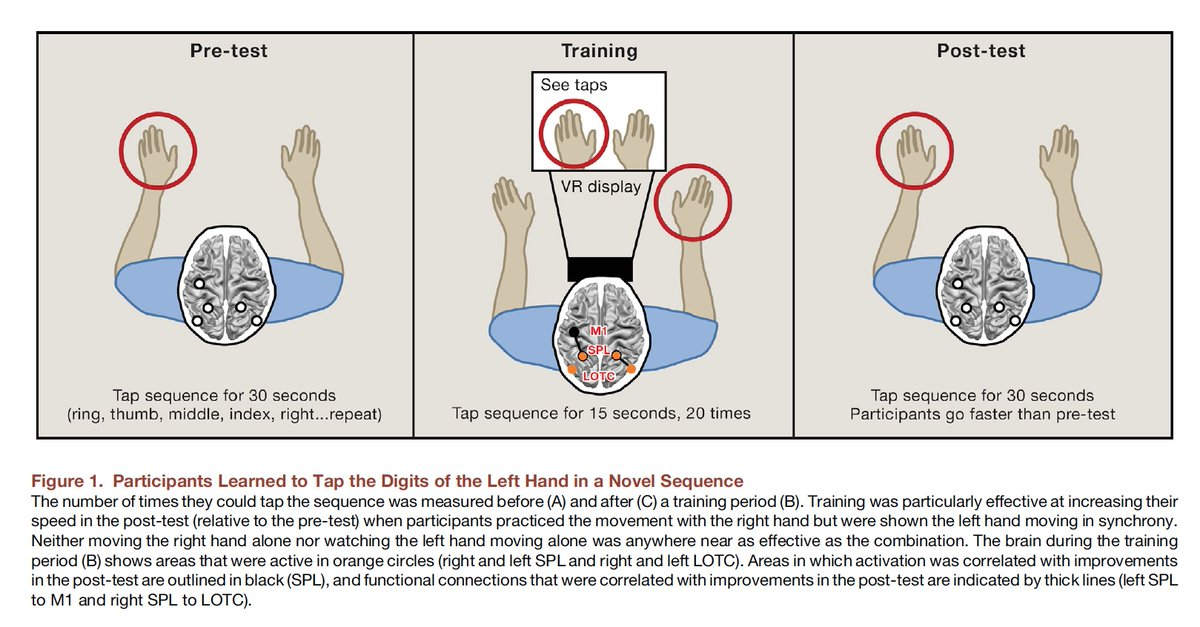 Eric Topol On Twitter Your Left Hand Really Does Know What Your