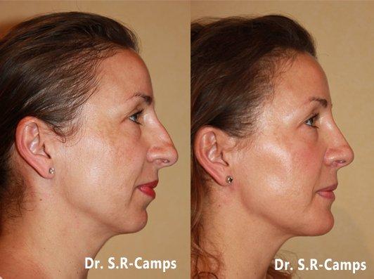 rinoplastia y mentoplastia antes y despues