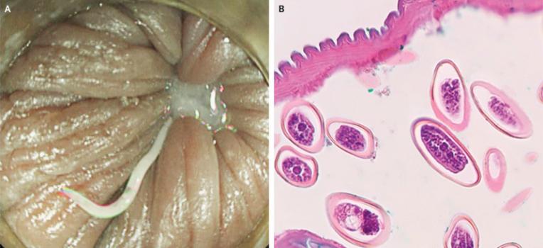 pinworm vakbélgyulladás