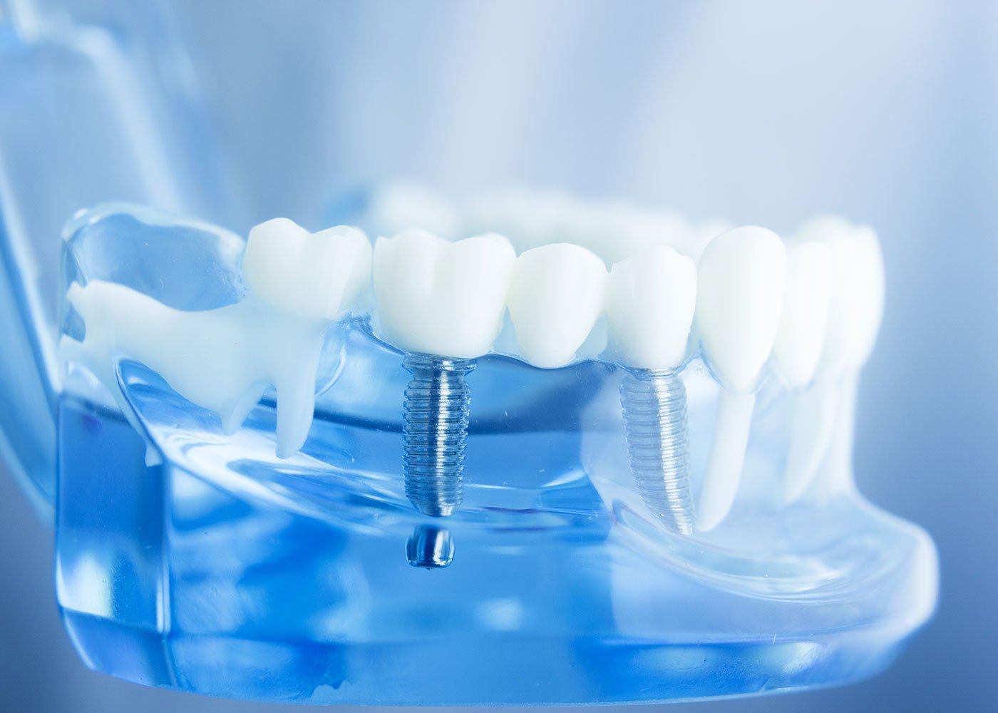 полосе стоматологические картинки зубы образец глубины