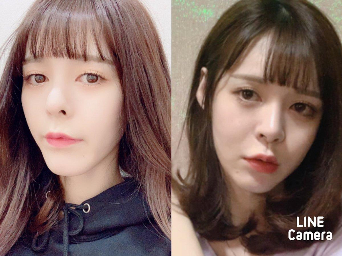 韓国で整形してから、61日目??写真は左側が術前、右が手術から今の状態です?少しずつですが、輪郭が綺麗になっていく感じが嬉しいです?