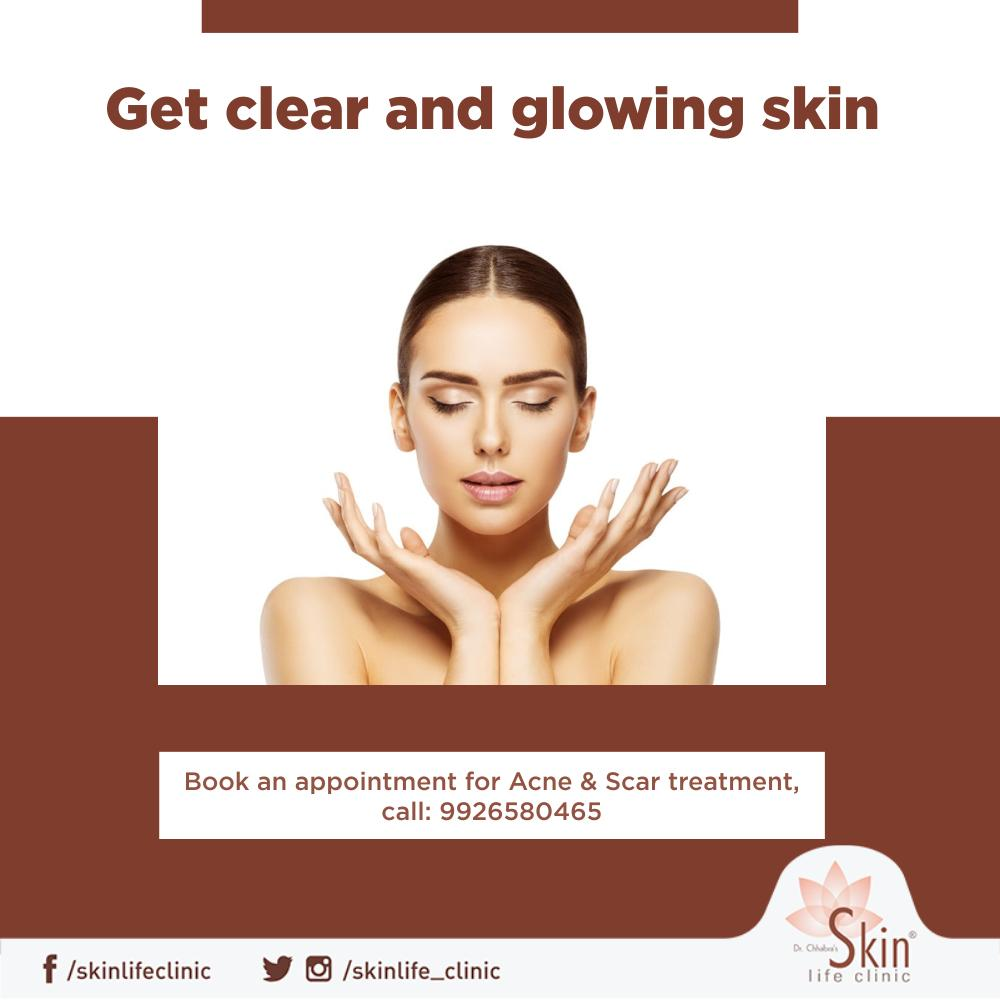 Acne and scars can be effectively treated! Book an appointment with our expert now. contact: 9926580465  #ScarReduction #AcneTreatment #Acne #Problem #DrChhabra #Skinlife #Clinic