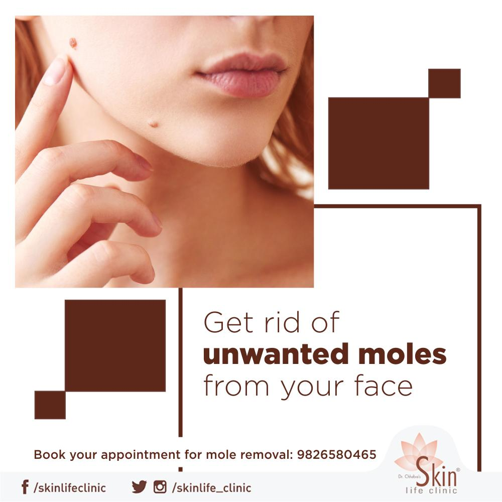 Moles are harmless but if it starts getting painful or shows symptoms like itching and bleeding then one should consult a dermatologist. #Skinlife #Indore #Dermatologist