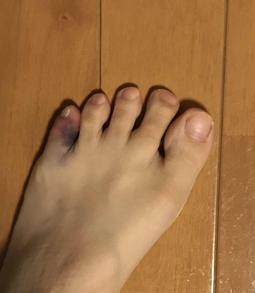 歩ける 足首 骨折