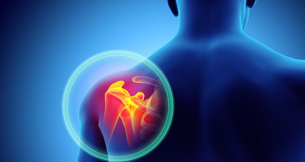 RT Tendinitis and bursitis are usually brought on by the overuse or injury of a joint, like your ankle, elbow, knee, hip, shoulder, or wrist. What you should know about treatment options: https://t.co/FkV3V4n5en https://t.co/OR5brzEzl0 #health #wellness via WebMD:
