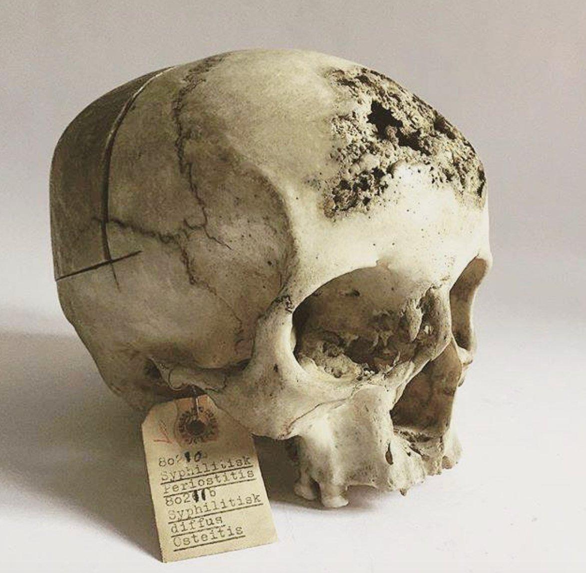 Cráneo tras padecer de sífilis terciaria. Esta infeccion en etapas avanzadas ataca estructura óseas, sistema nervioso, entre otras. Copenhague, siglo XIX.  #Sifilis #Craneo #Skull #Micro #Pato #Anato #TreponemaPallidum