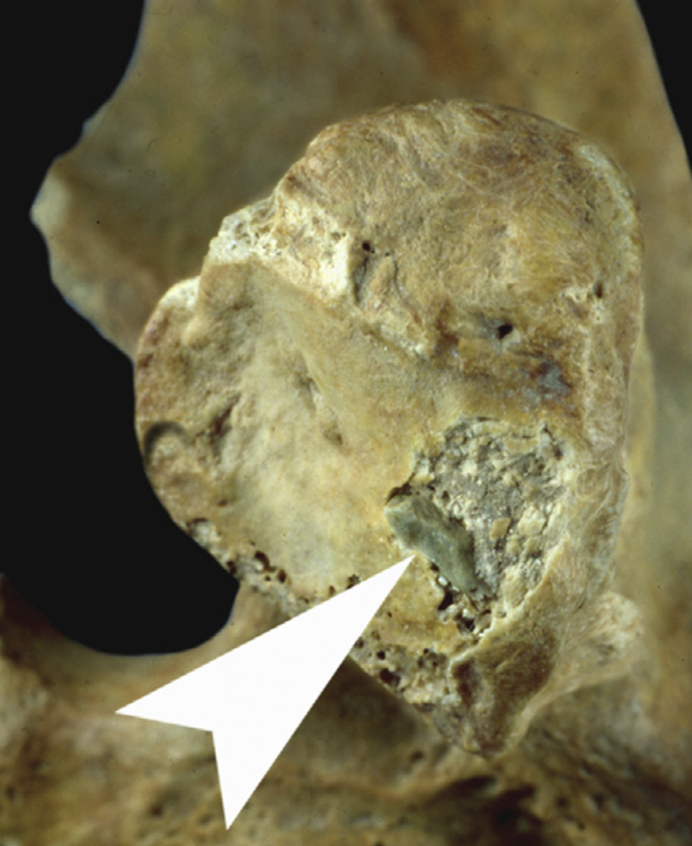 Stone tool embedded in cave bear vertebra. Strong example of how humans contributed to the #extinction of #cavebears. Among the examples of how I demonstrate that humans have been shaping and modifying ecosystems since the #Pleistocene.  https://www.sciencedirect.com/science/article/pii/S1040618214007642…