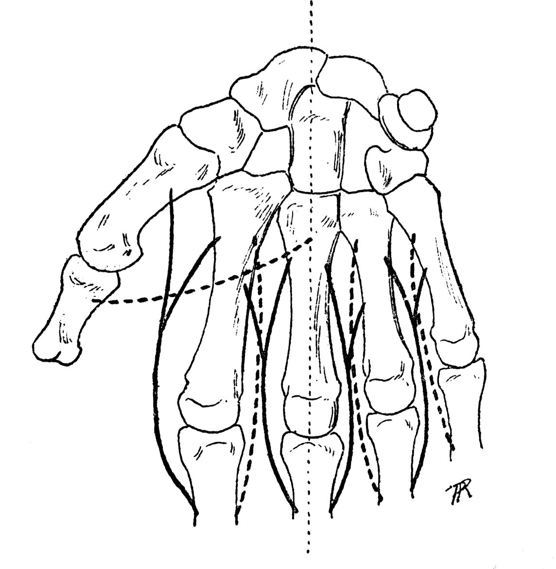 関節 中 手指 節