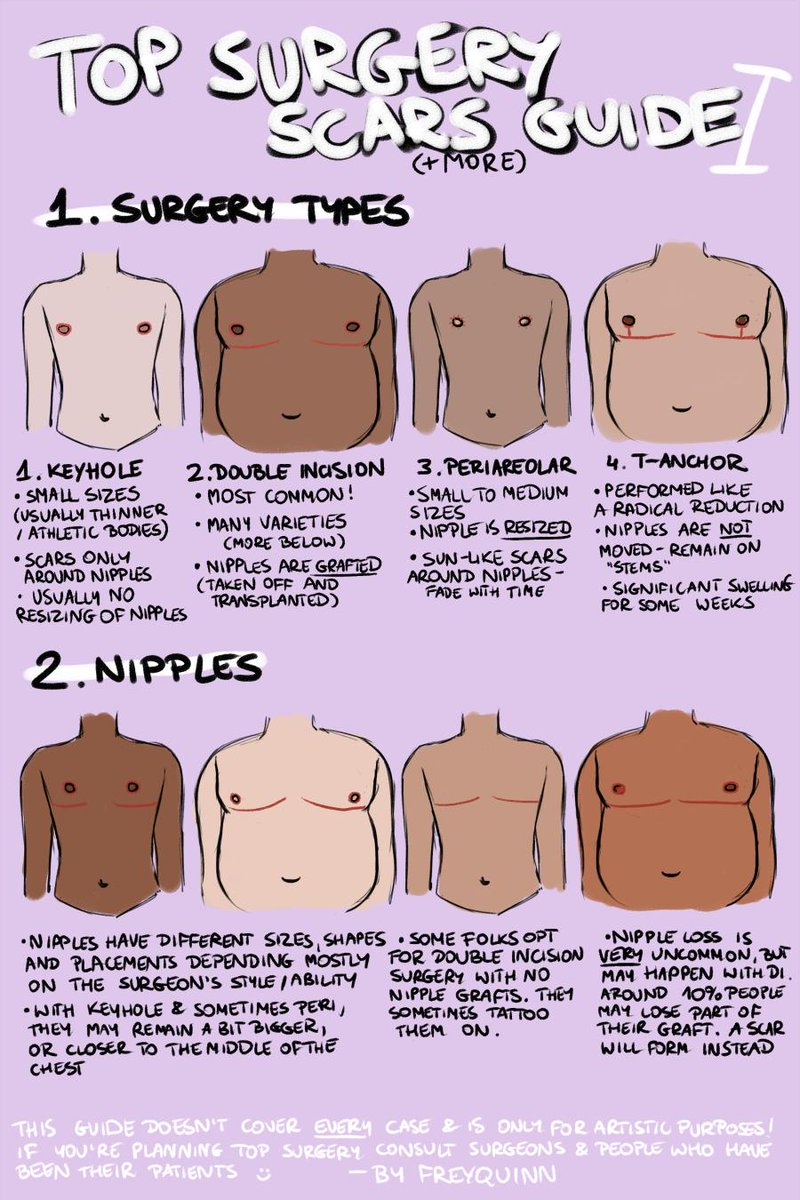 TOP SURGERY scars(+more) guide  i have seen very few guides on drawing chests that have undergone top surgery &amp; the few i&#39;ve seen were very flawed, so now that i&#39;ve recovered from my own surgery i decided to draw my own! this may have more parts if i remember more stuff! <br>http://pic.twitter.com/3PT7VmkOgC