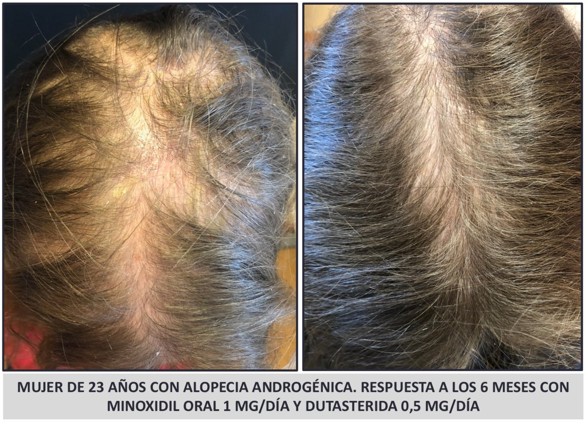 Dr Sergio Vano On Twitter Severe Female Androgenetic Alopecia Early Response After 6 Months With Oral Minoxidil 1 Mg Daily Oral Dutasteride 0 5 Mg Daily No Adverse