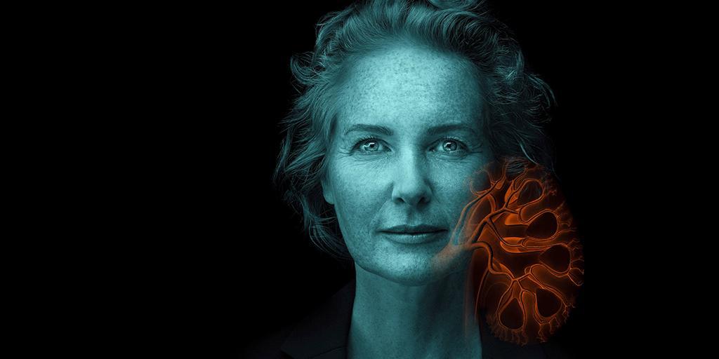 Siemens Healthineers's photo on #WorldKidneyDay
