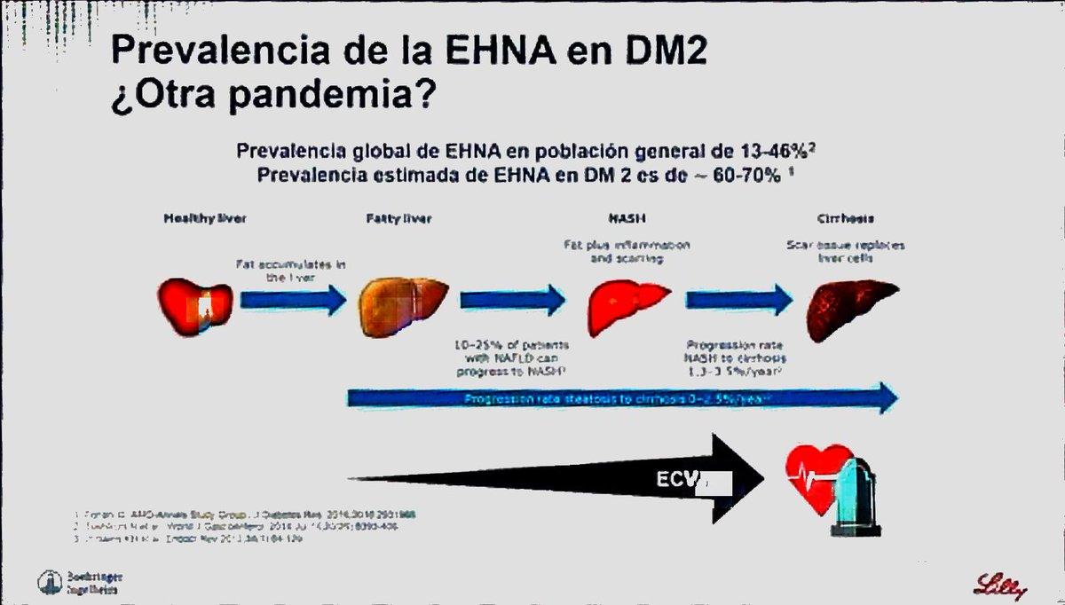 cirrosis hepática y diabetes