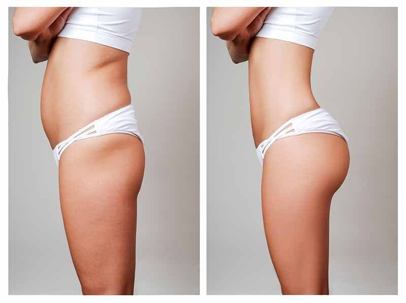 Liposuction HD in Los Angeles