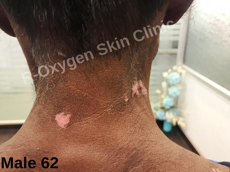 R-Oxygen Skin Clinic (@roxygenclinic)   Twitter