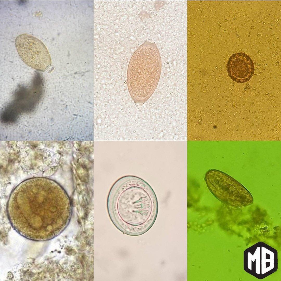 enterobius vermicularis quiste la cancer du colon