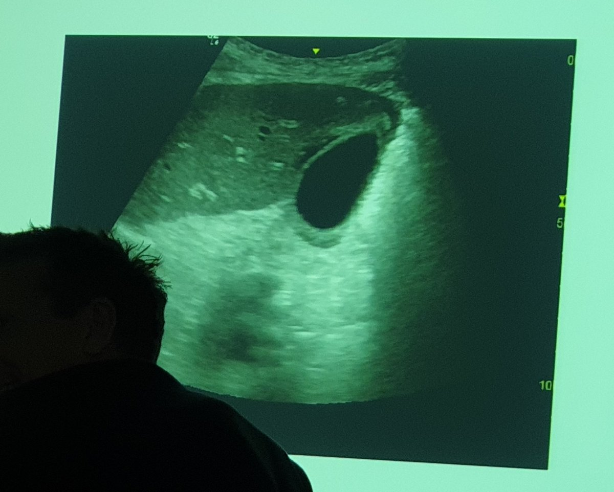 RUQ #POCUS pearls from @AIU_Ultrasound   Not all thick walled, oedematous gallbladders are acute cholecystitis, consider: 1. RHF or PE 2. Recent aggressive fluid resuscitation 3. Ascites 4. Leaky capillaries   5. Acalculous cholecystitis<br>http://pic.twitter.com/heccEGetZw