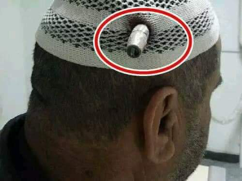 The power of Allâh.. A Palestinian Sheikh who was worship in mosque aqsa was shot by the Zionist of Israel.. by the power of God a zionist sniper bullet that was as big as a thumb could not penetrate the head of the sheikh.. #BIN HAIDARA #AL-HARAMAIN