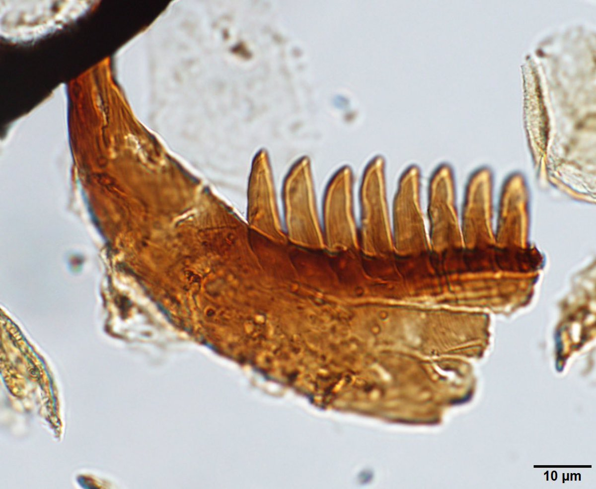 This #fossilfriday, why scale matters. #palynology<br>http://pic.twitter.com/H0YlBdGodE