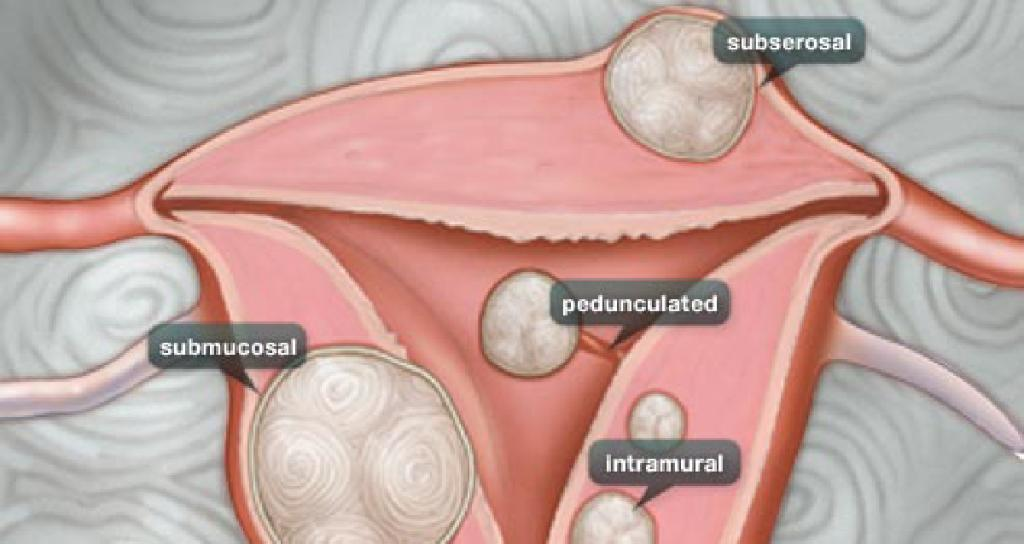 As many as 70% to 80% of all women will have fibroids by age 50. https://wb.md/2FtxX8e