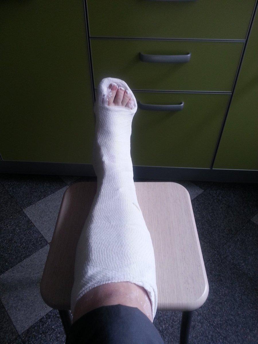 нога худеет и болит