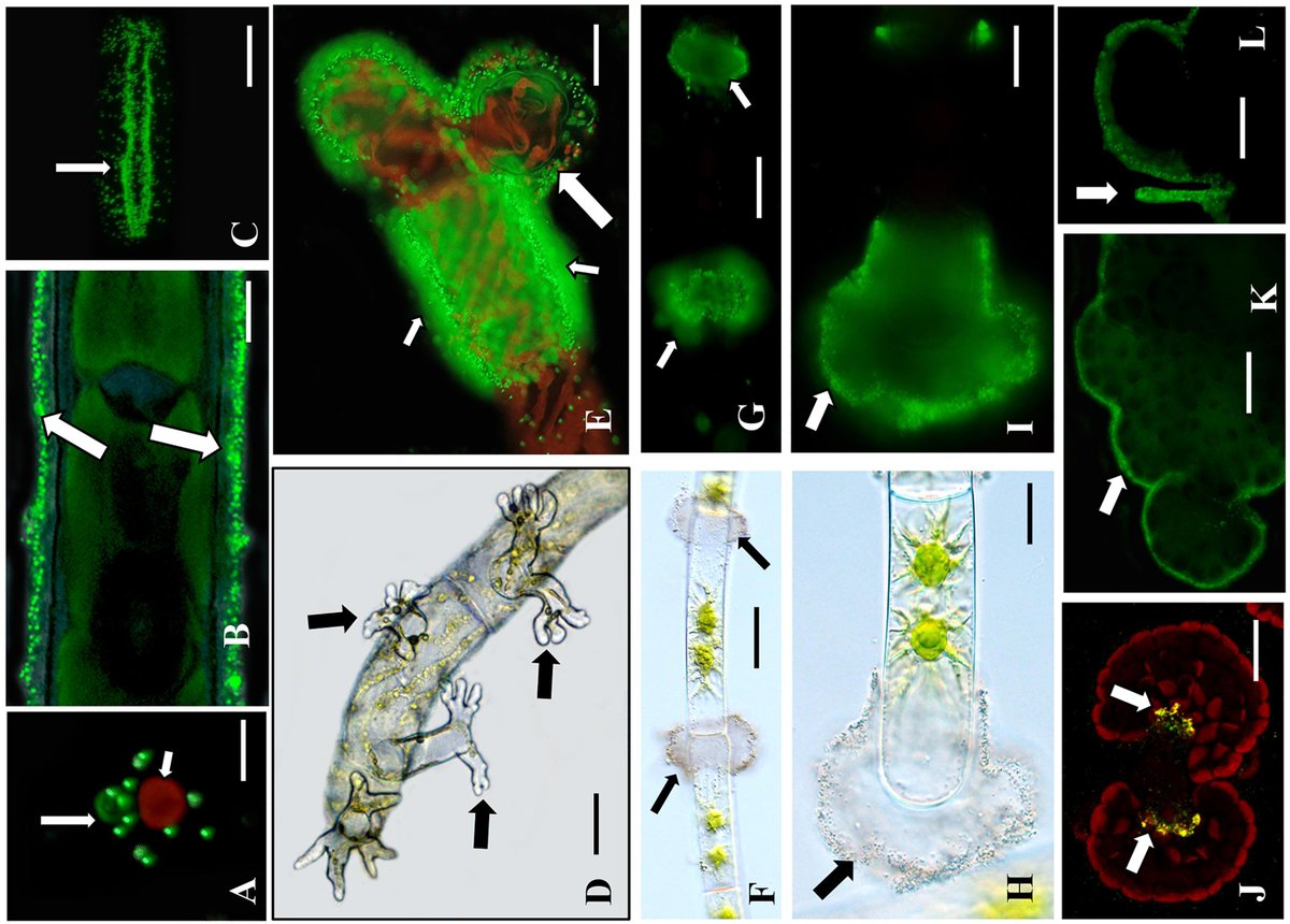 Nice study led by David Domozych and @Klebsormidium ! Arabinogalactan Proteins and the Extracellular Matrix of #Charophytes: A Sticky Business || #plantsci #algae https://www.frontiersin.org/article/10.3389/fpls.2019.00447 …