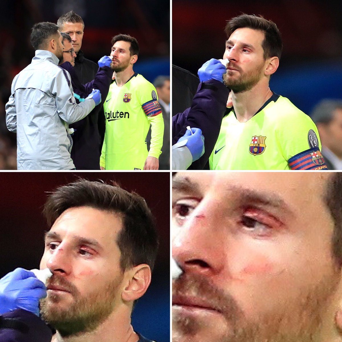 Man Utd vs Barca: Messi Gets A Broken Nose And Swollen Eye After Collision With Chris Smalling