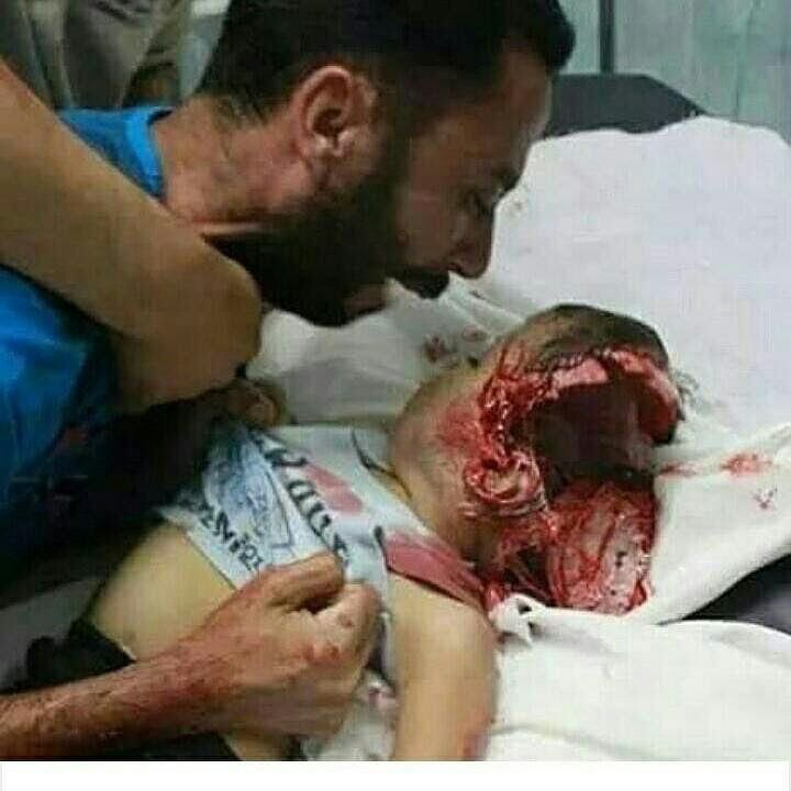 How can anyone stay calm and silent after seeing this...😰 You all people have time to twit about your life..about politics... about films...about awards...but you don't have a sec for speaking or doing anything for them... #PakistanStandsWithPalestine @MarkhorTeam