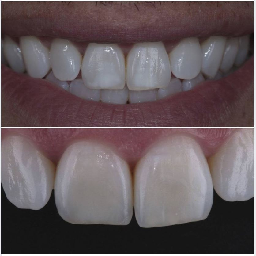 Don't forget to check out this Icon case. The patient was very happy with the results. More at: http://ow.ly/LVKi50nrJM1. #DMGAmerica #IconbyDMG