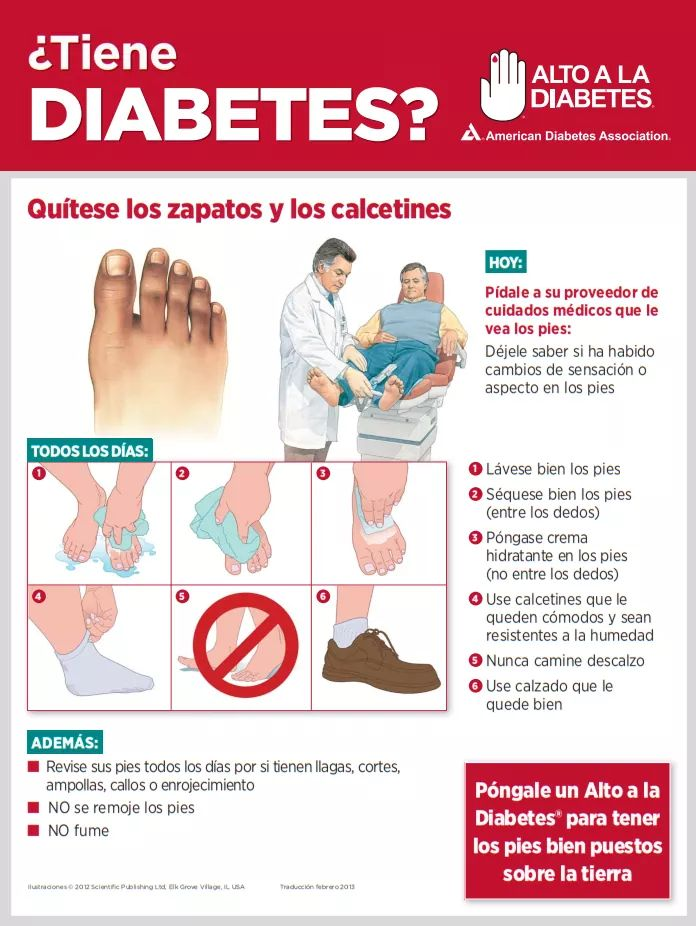amputación causada por diabetes