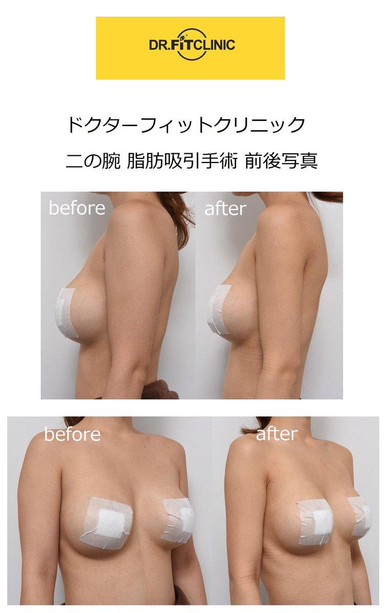 脂肪 吸引 韓国