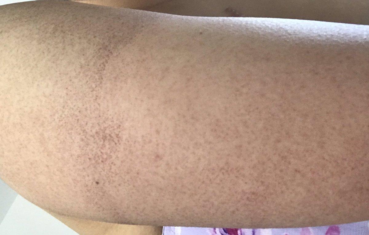 腕のぼつぼつの治療のレーザーやった直後とその2日後。腕太すぎて吸引したい。。。最初の頃のぼつぼつ具合撮っておけば良かったなぁって後悔?とりあえず4回コース全部終わったから今度は医療脱毛していく〜(*˙˘˙*)?いらない毛はうちの体から全て消してやる。