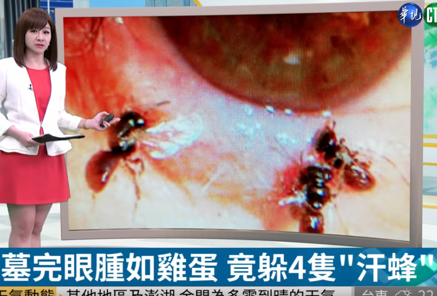 Doctors remove four live bees feeding on tears inside a woman's eye