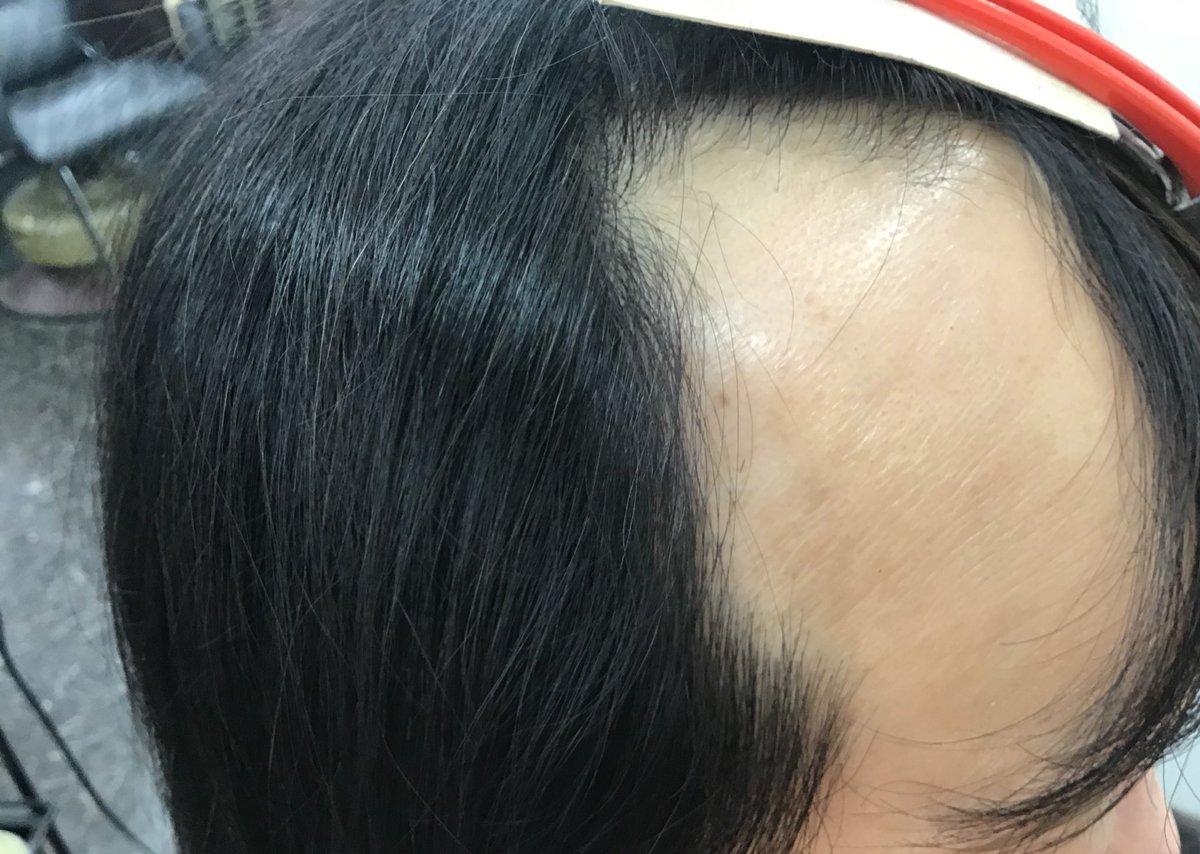 【脱毛症】この春 頭皮にアプローチ始めました !!!!治療時は取り外せます。お風呂の時に外し、毎朝 頭皮にピタッとつけられます! 皮膚の弱い方用も水泳用もございます#脱毛症  #0秒ヘア #わたしの毛活  #SHIKOU  #ウィッグ  #美髪倶楽部