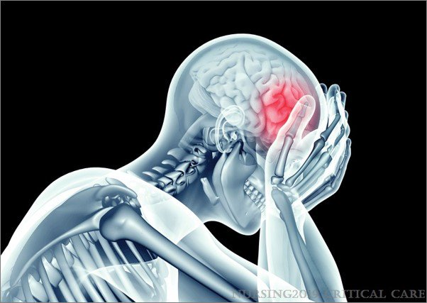 This article discusses traumatic brain injury and its management to guide critical care nurses in understanding and caring for this complex and serious injury. #CriticalCare #Nursing #BrainInjury   http:// ow.ly/3bdw50rjyia  &nbsp;  <br>http://pic.twitter.com/yZJ8OiFScY