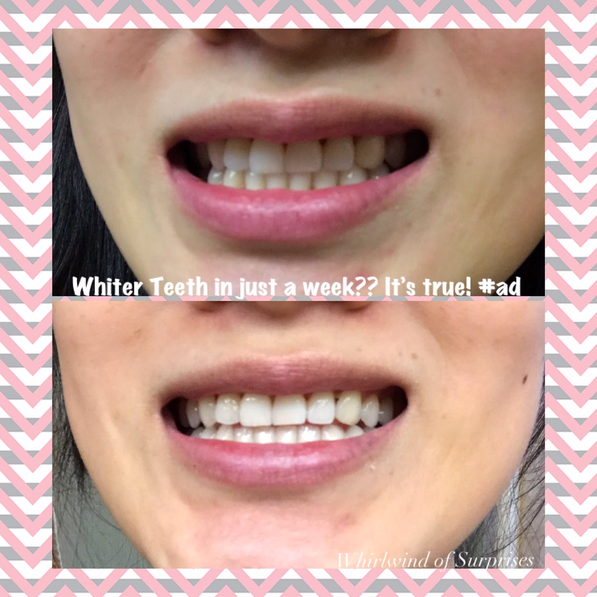 How to get whiter teeth in 1 week