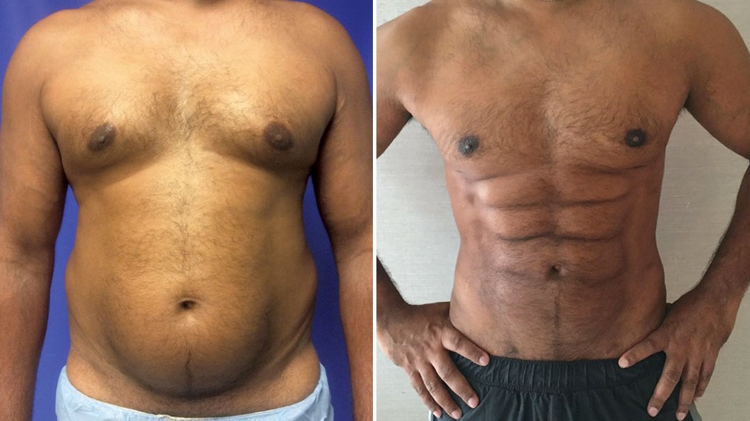 Skip the gym, plastic surgeons can now sculpt belly fat into a weird chiseled six-pack http://gizmo.do/YVlIMuO