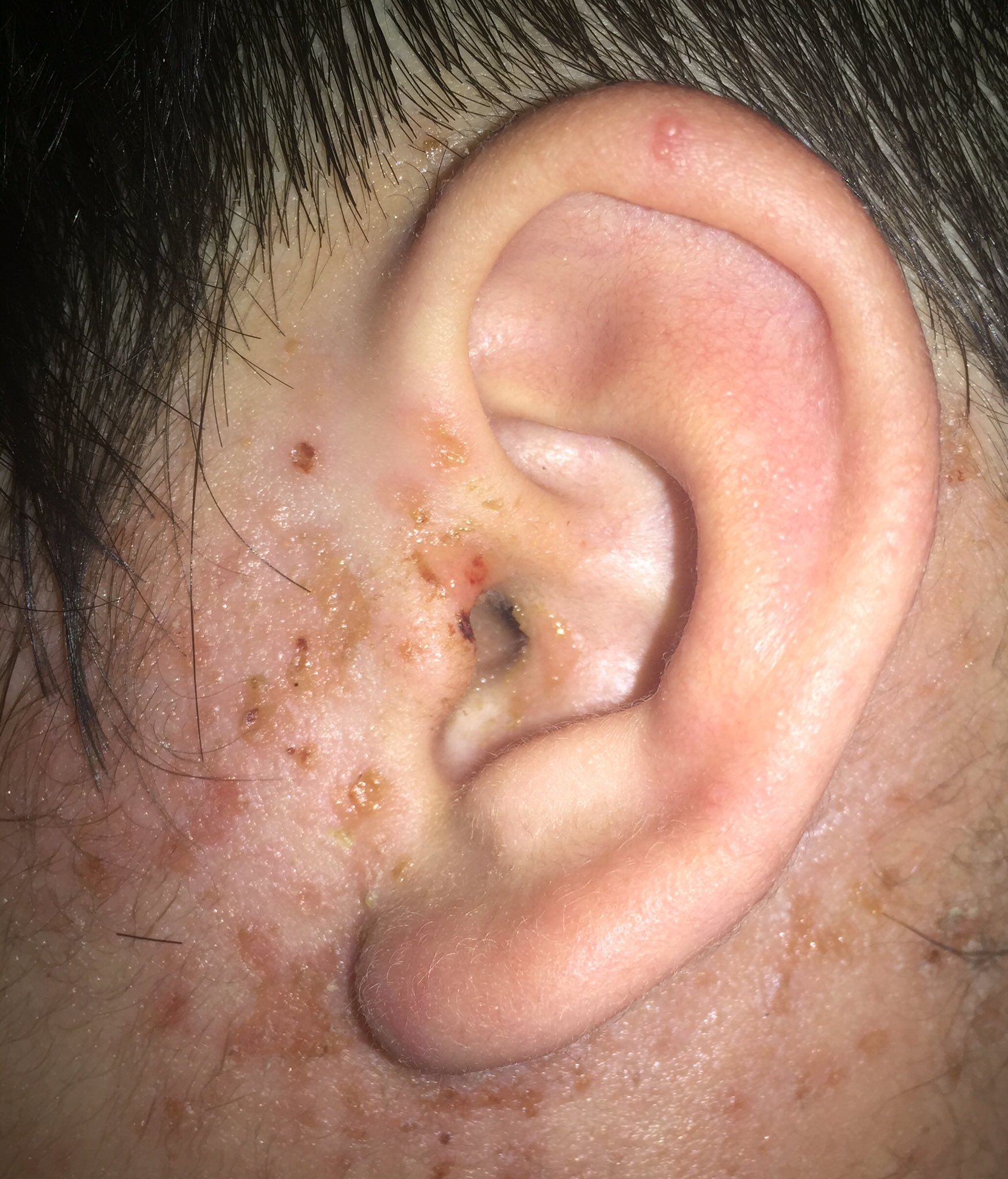 様 症 水痘 カポジ 発疹
