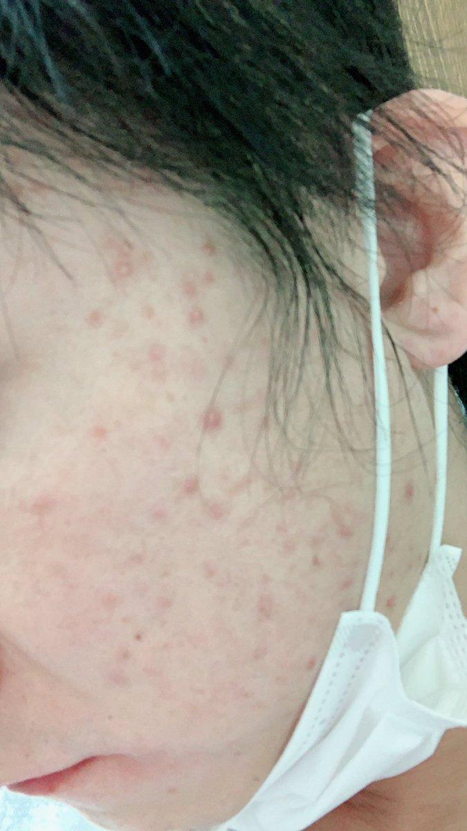 1月から全頭型脱毛症になって4ヶ月。ステロイドの副作用で顔中ひどいニキビ。大量のプレドニゾロン1日35ミリ服用。他薬5種類。もはや入院レベルらしい。基本筋トレ禁止!ストレスと過労を極力回避する生活らしい。ぼくには無理だ!